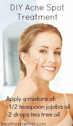 Make Your Own Acne Spot Treatment - Better than Benzoyl Peroxide