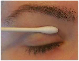 apply qtip drooping eyelid