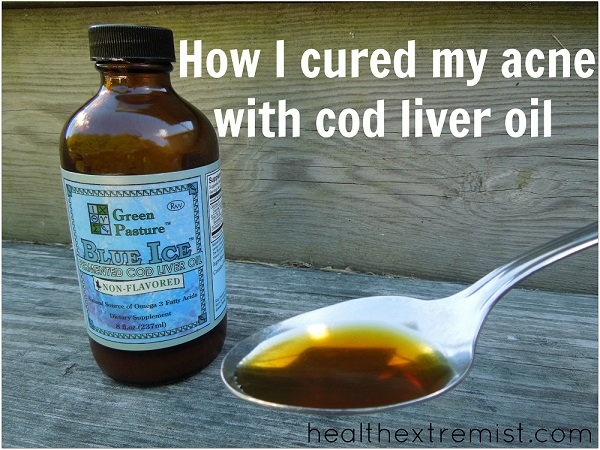 cure acne with cod liver oil