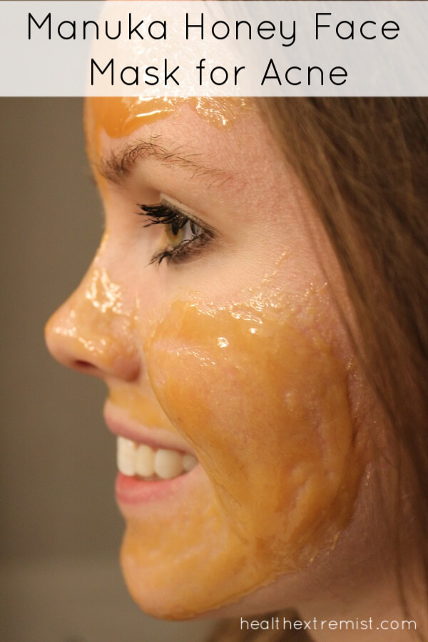 Using a Manuka Honey Face Mask for Acne - Manuka honey can help prevent and treat acne breakouts.